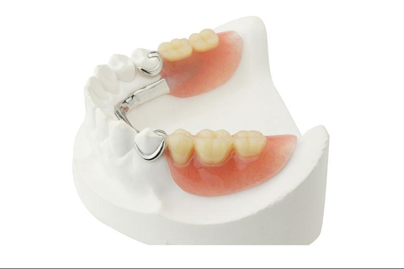 Partical-dentures